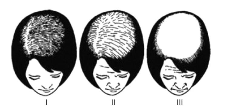 Female-Hair-Loss-Chart