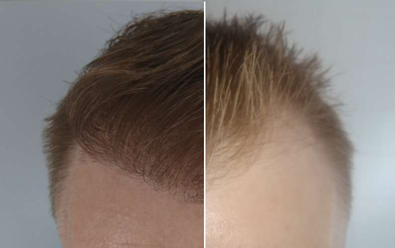 before after fue