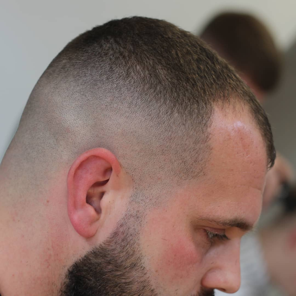 Top 5 Hairstyles for Receding Hairlines - With Wildcard ...