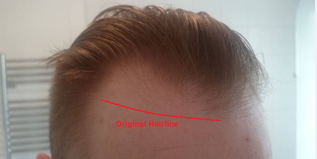 What a receding hairline looks like